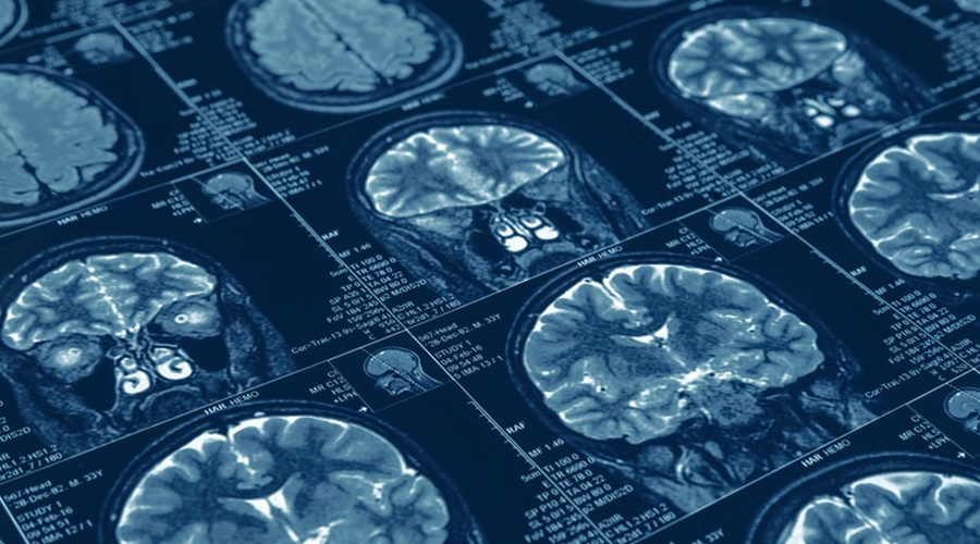 FDA Green Lights Diagnostic Blood Test for Concussions